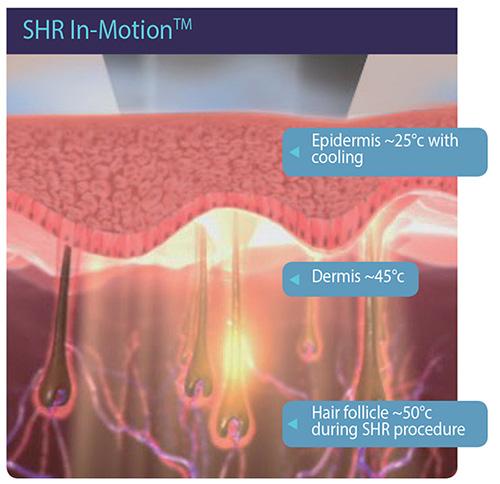 Alma Laser - Centar za Epilaciju - Zaštićena SHR i Napredna IN-MOTION™ Tehnika